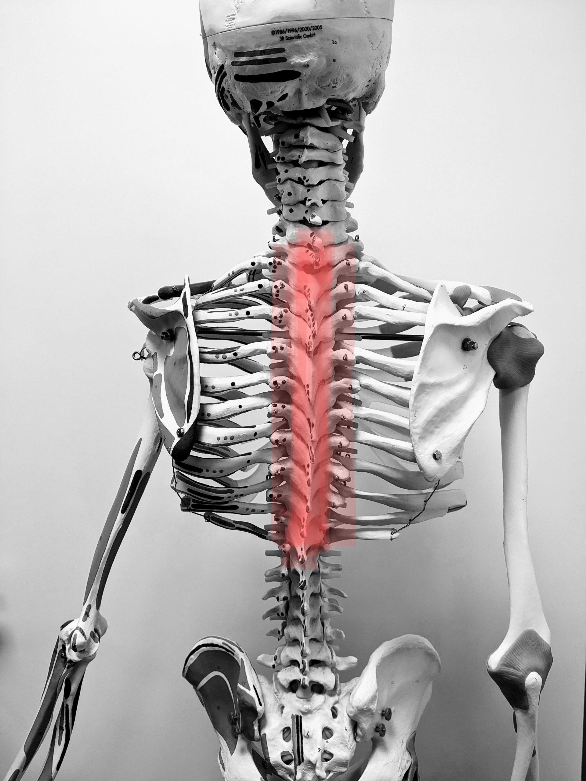 Schmerzen in der Brust und Brustwirbelsäule